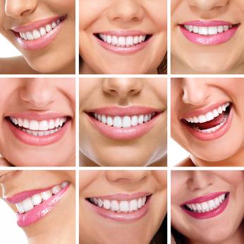 Schöne Zähne nach Kieferorthopädie
