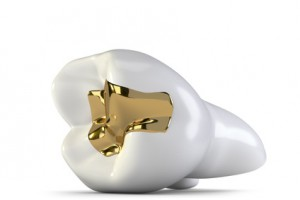 Zahn mit goldenem Veneer