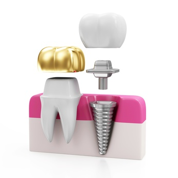 Zahn mit goldenem Zahnimplantat