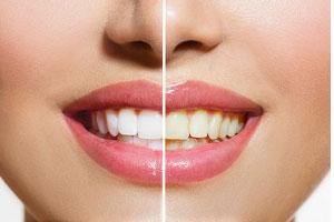 Bleaching für strahlend weiße Zähne