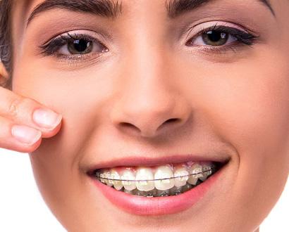 Aesthetische Zahnspangen
