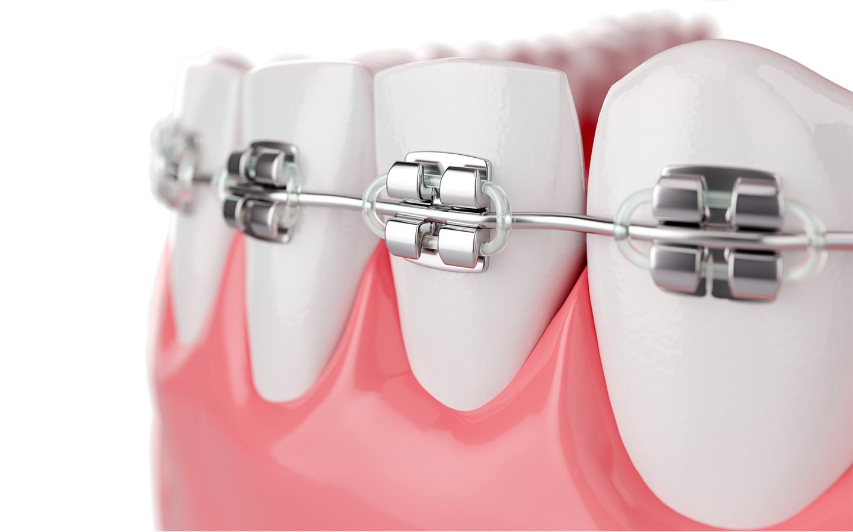 Festsitzende Zahnspange bestehend aus Brackets und Drähten