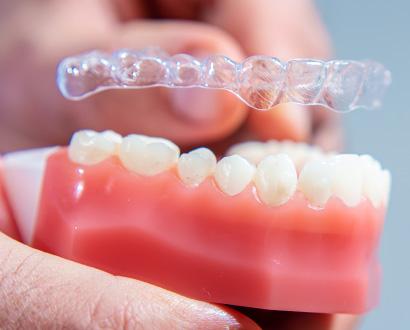 Unsichtbare Zahnspange mit der Invisalign Methode